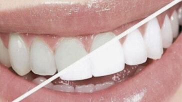 λευκανση δοντιων στο σπιτι,λευκανση δοντιων θεσσαλονικη,λευκανση δοντιων πωσ γινεται,λευκανση δοντιων παρενεργειεσ,λευκανση δοντιων στο σπιτι με μασελακια,λευκανση δοντιων προιοντα,λευκανση δοντιων αρνητικα,λευκανση δοντιων τιμη