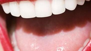 λευκανση δοντιων,λευκανση δοντιων στο σπιτι,λευκανση δοντιων προιοντα,λευκανση δοντιων στο σπιτι με μασελακια,λευκανση δοντιων με μασελακι,λευκανση δοντιων προσφορεσ,λευκανση δοντιων θεσσαλονικη,λευκανση δοντιων αρνητικα,λευκανση δοντιων θεσσαλονικη,λευκανση δοντιων προσφορεσ